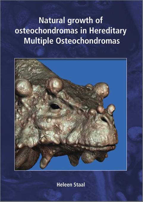 Natural growth of osteochndromas in Hereditary Multiple Osteochondromas