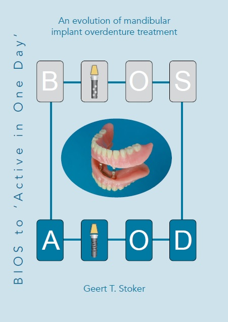 BIOS to 'Active in One Day' An evolution of mandibular implant overdenture treatment