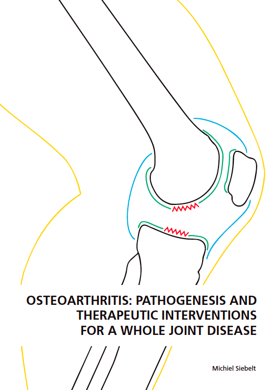 Osteoarthritis: Pathogenesis and therapeutic interventions for a whole joint disease